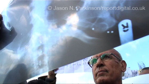 A survivor from the Day of Rage protests holds up an X-ray showing the shotgun pellets that are still inside his body.